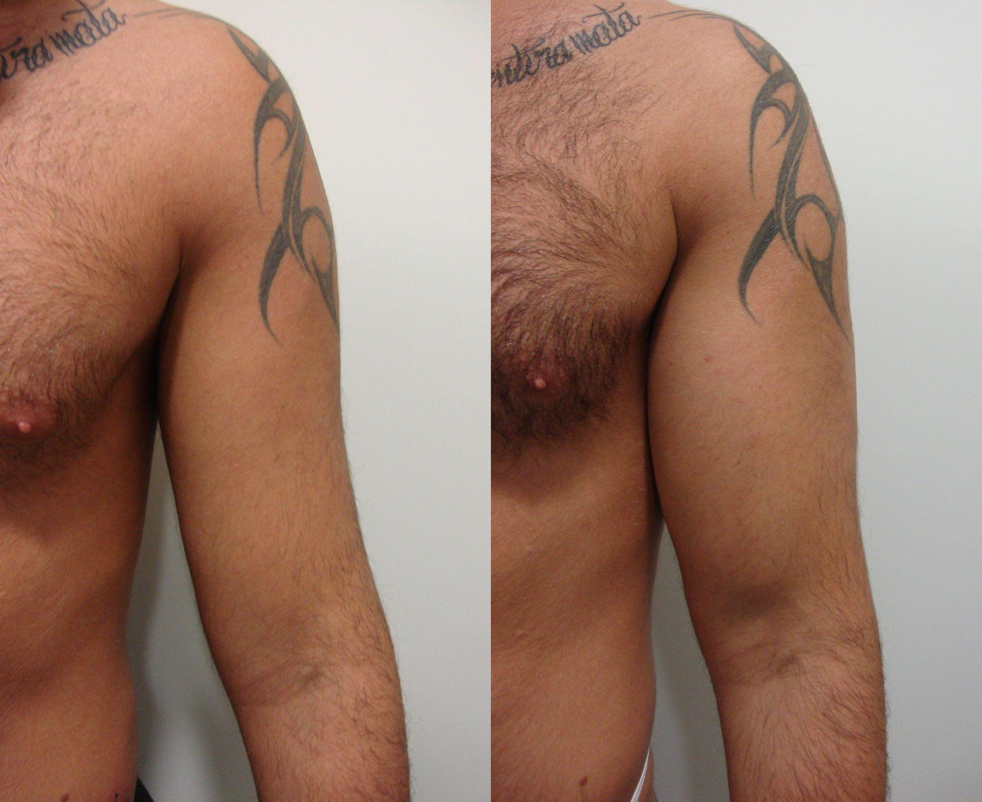 Pròtesi de bíceps - Foto 1