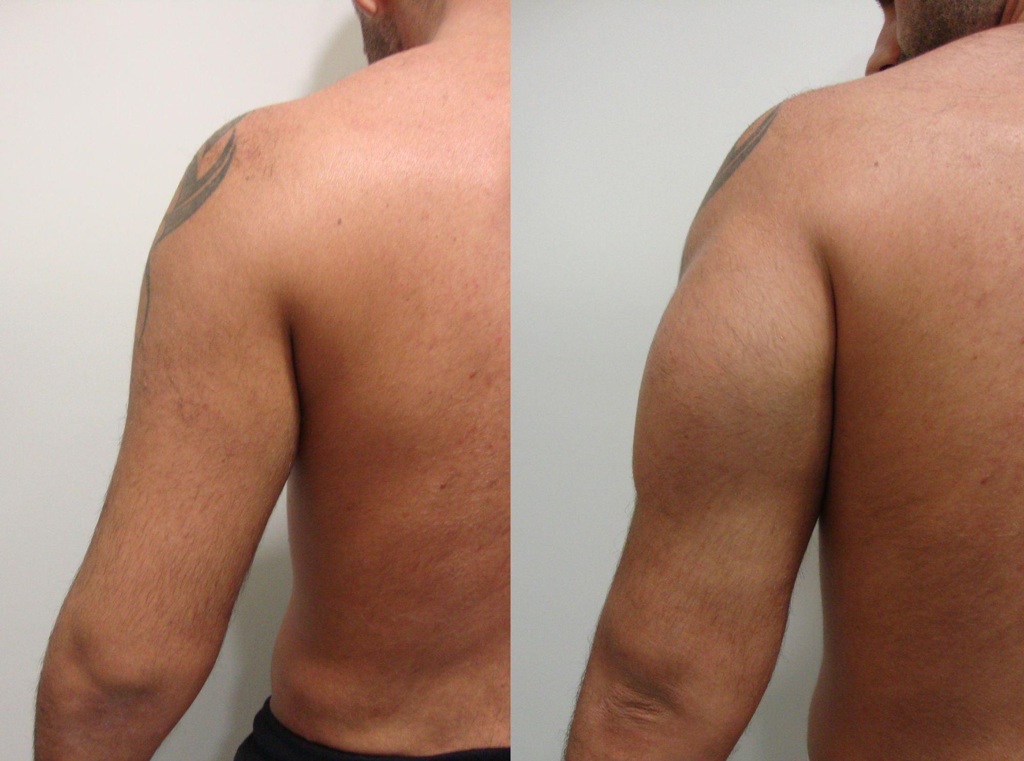 Triceps implants - Picture 1