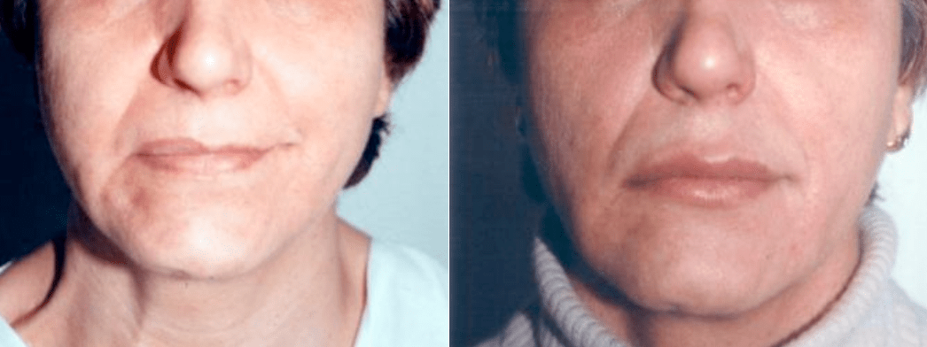 Reconstrucción de labios 2