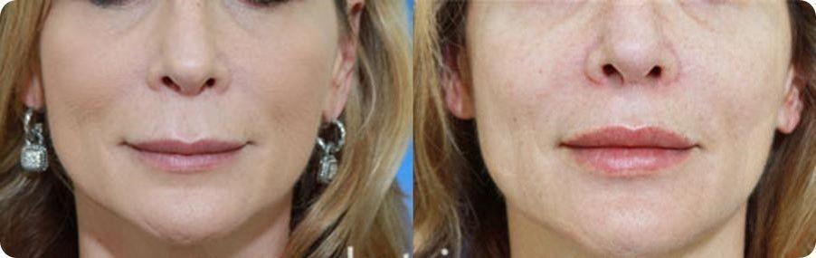 Reconstrucción de labios 3
