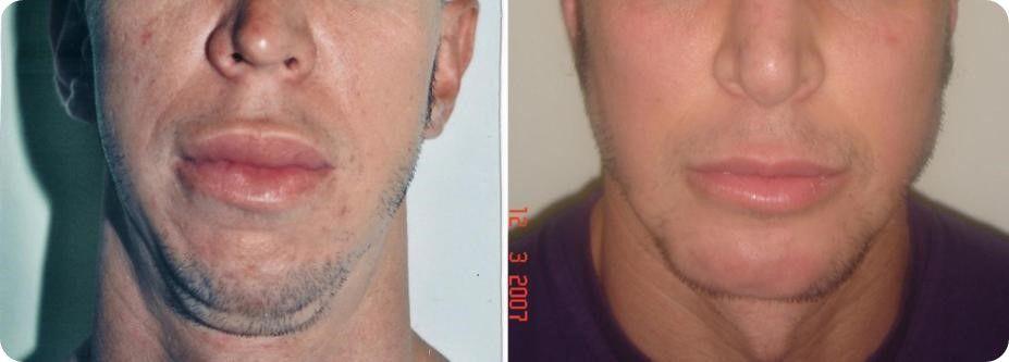 Reconstrucción de labios 4