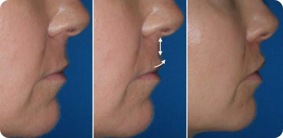 Reconstrucción de labios 5