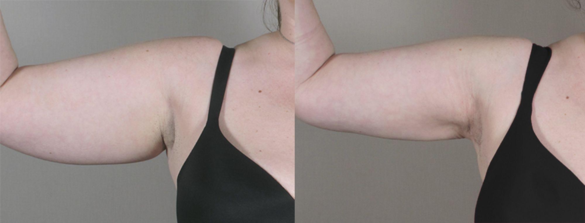 liposucción de brazos - foto 1