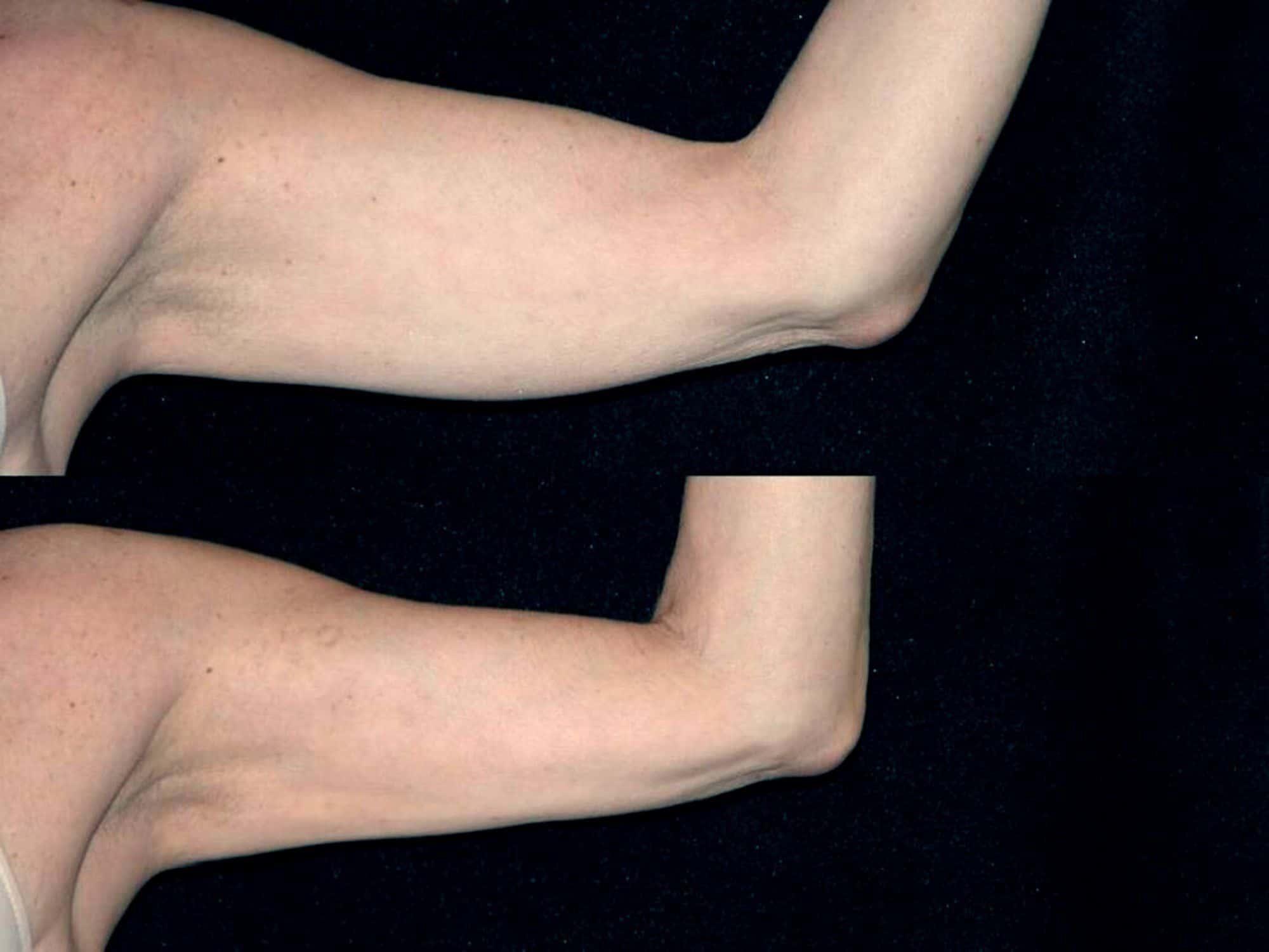 liposucción de brazos - foto 2