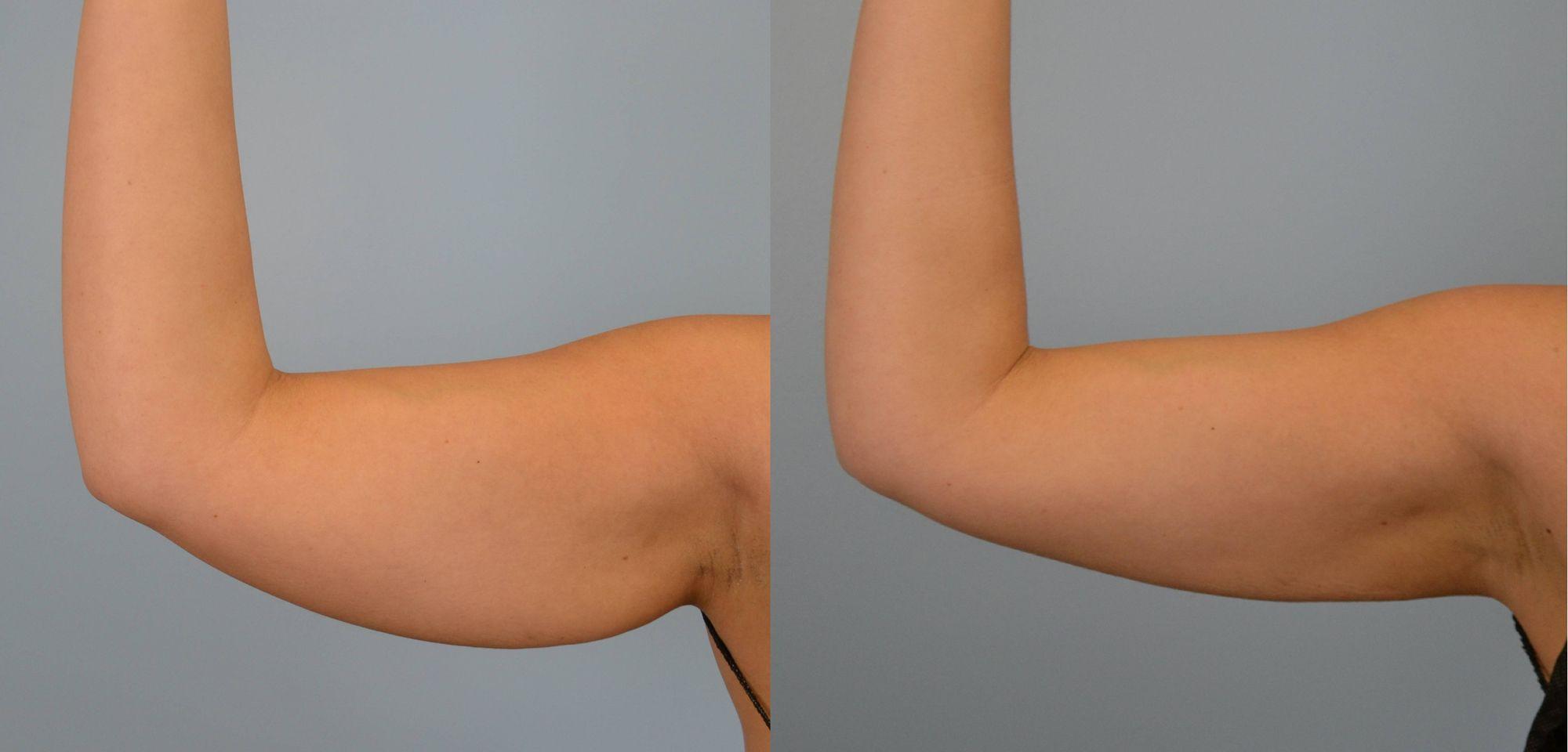 liposucción de brazos - foto 3
