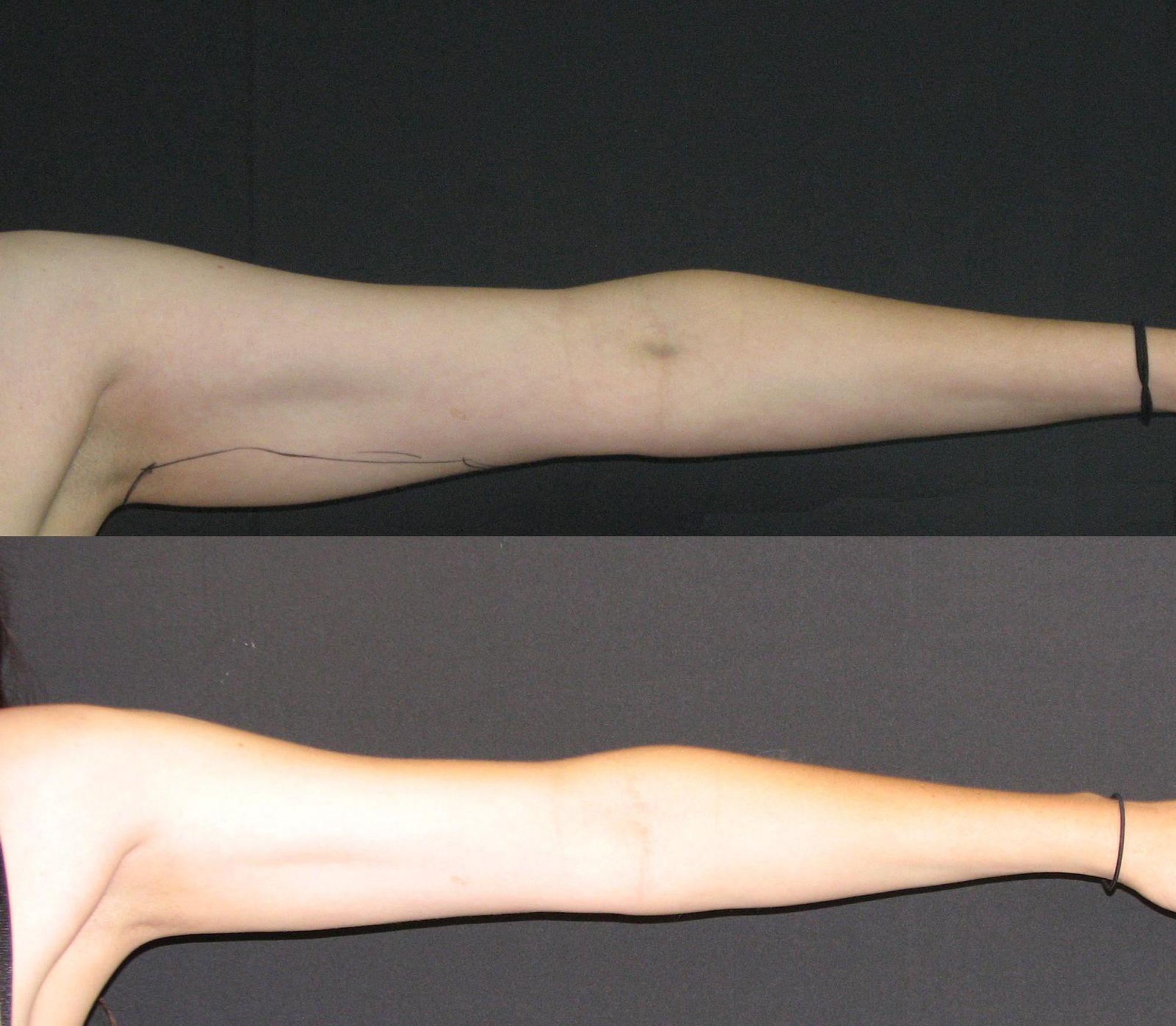 liposucción de brazos - foto 4