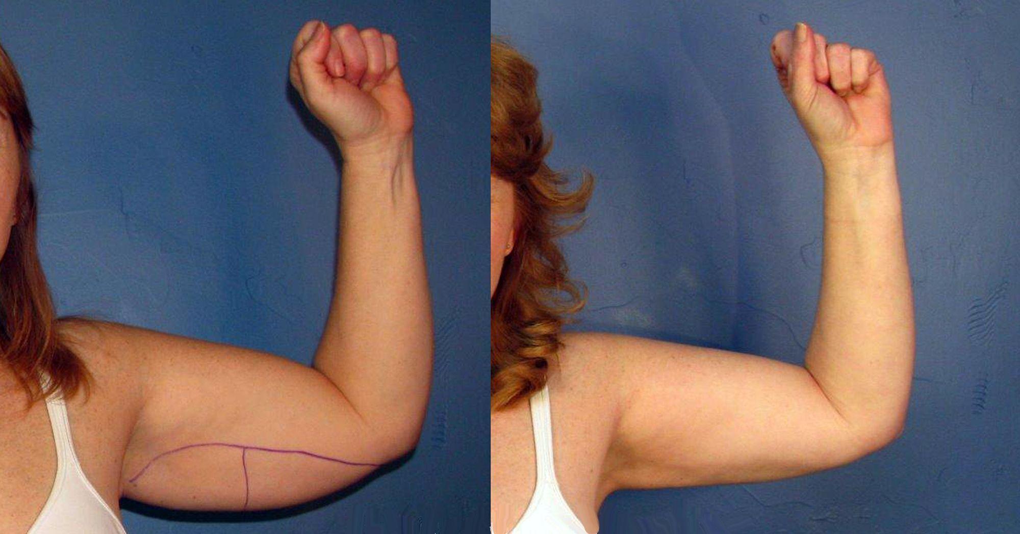 liposucción de brazos - foto 5