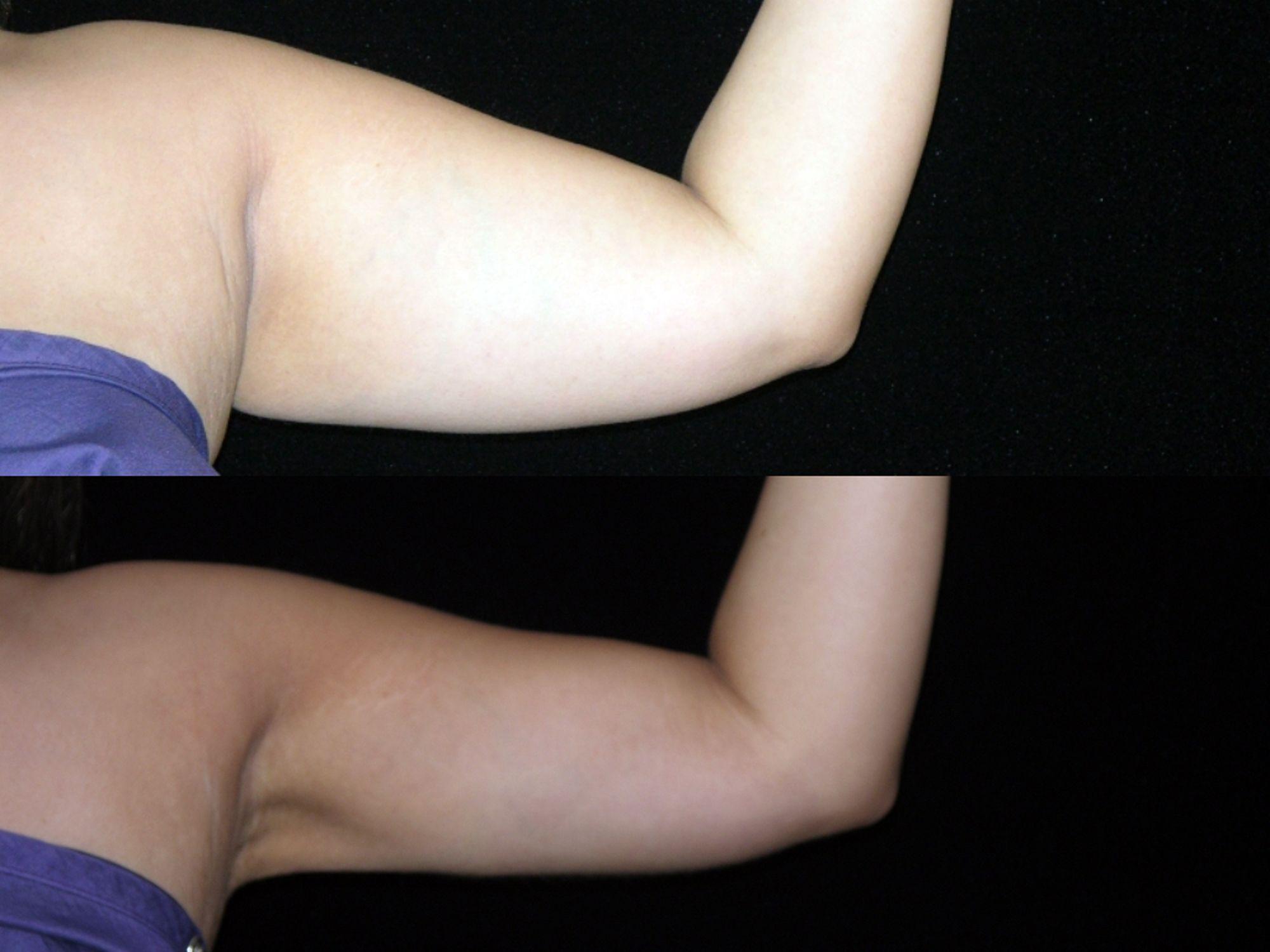 liposucción de brazos - foto 6