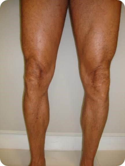 Calf muscle implants - Picture 5