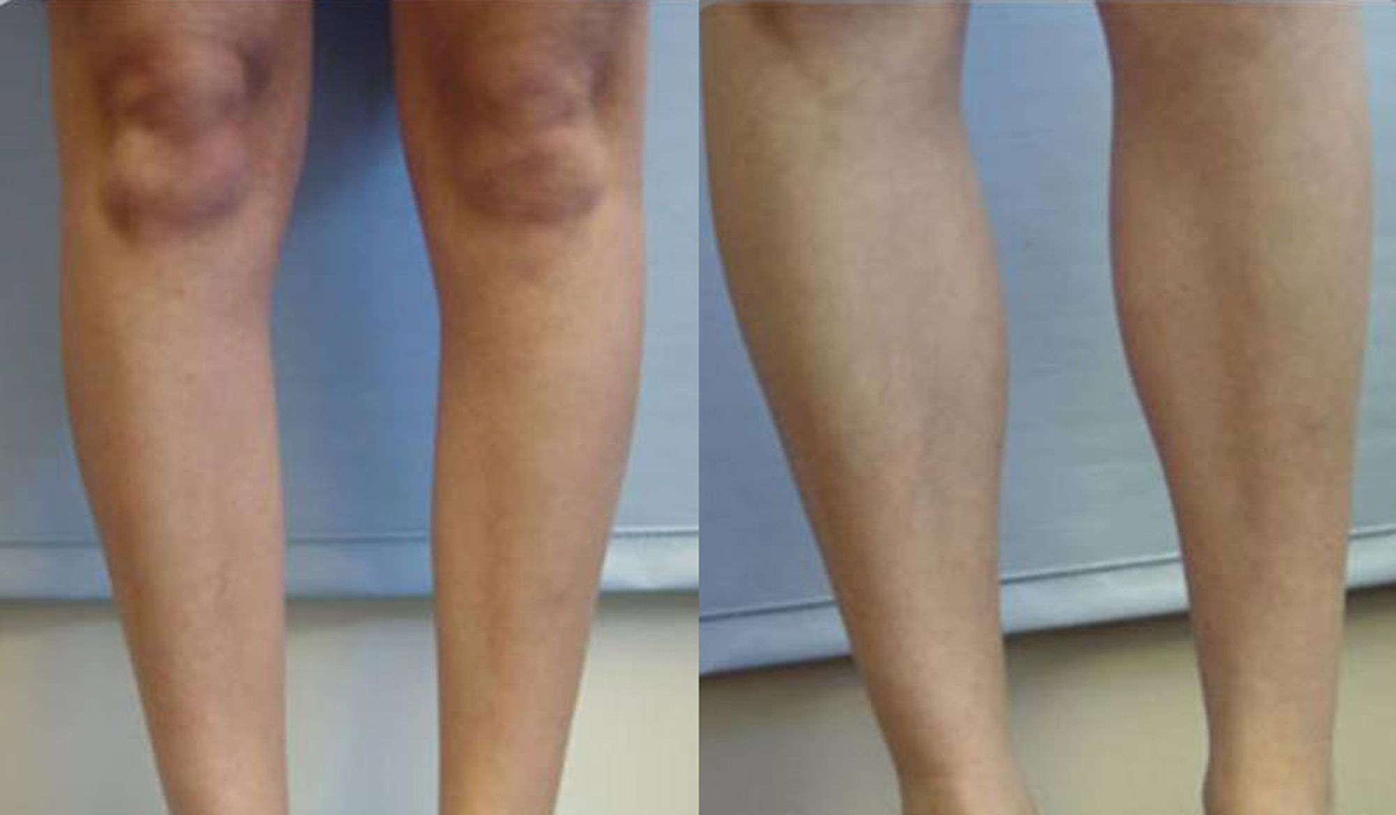 Calf muscle implants - Picture 6