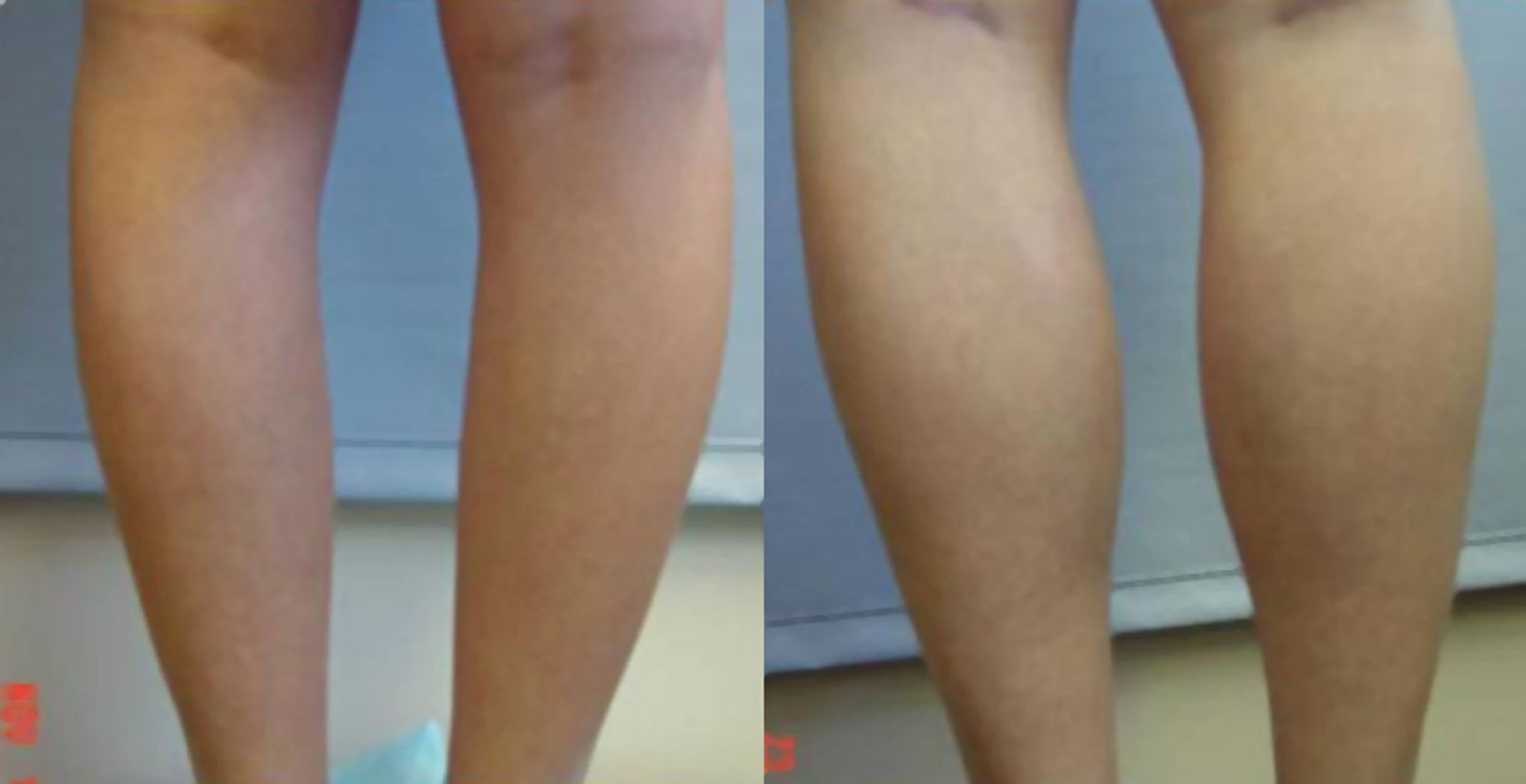 Calf muscle implants - Picture 1