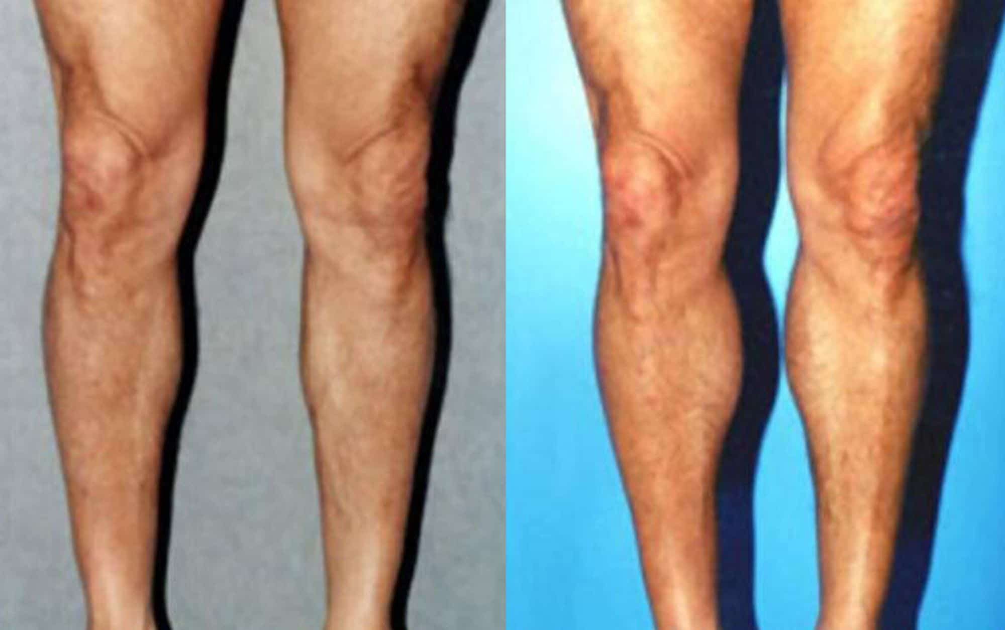 Calf muscle implants - Picture 2