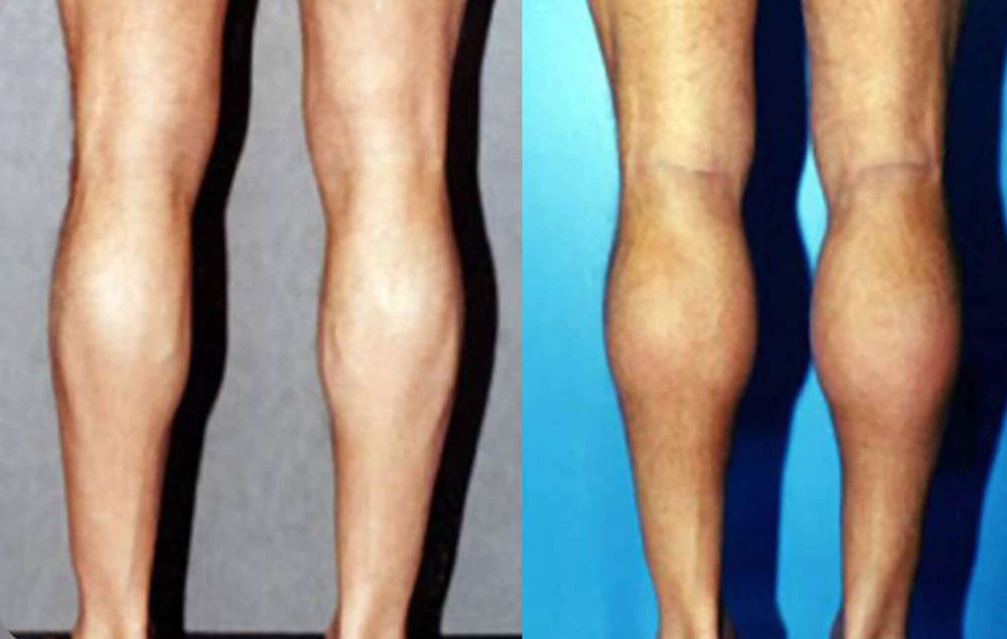 Calf muscle implants - Picture 3