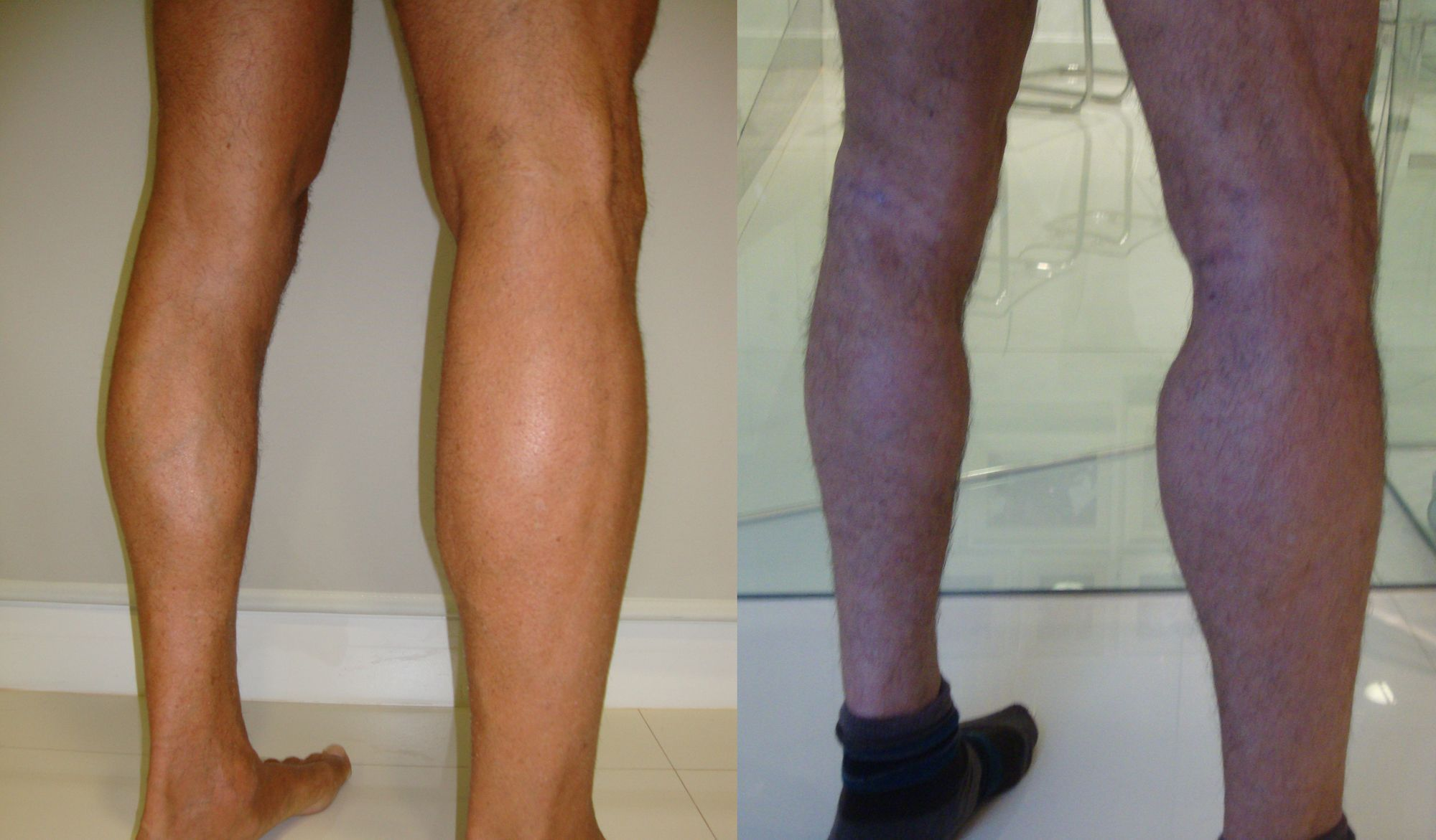 Calf muscle implants - Picture 4
