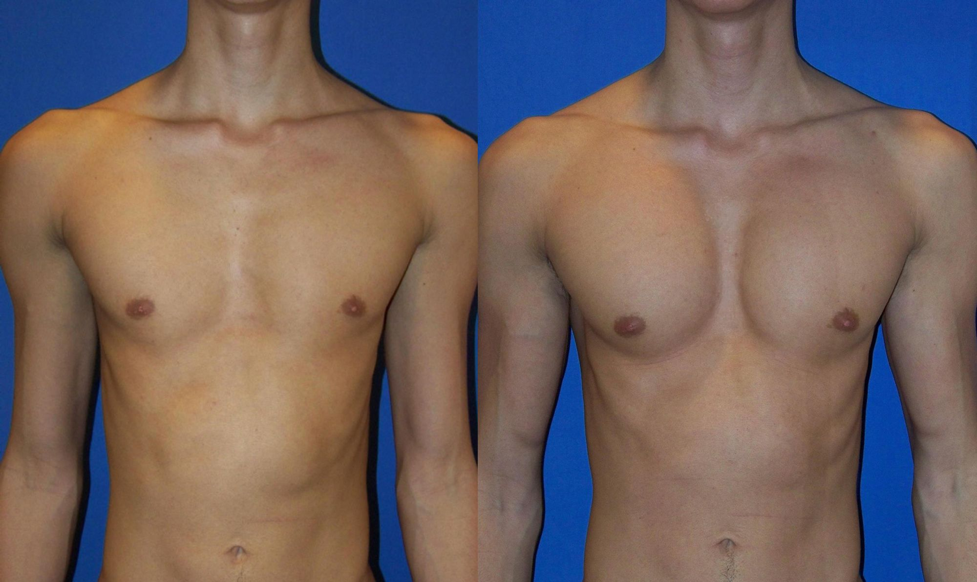 Pectoral prosthesis - Picture 6