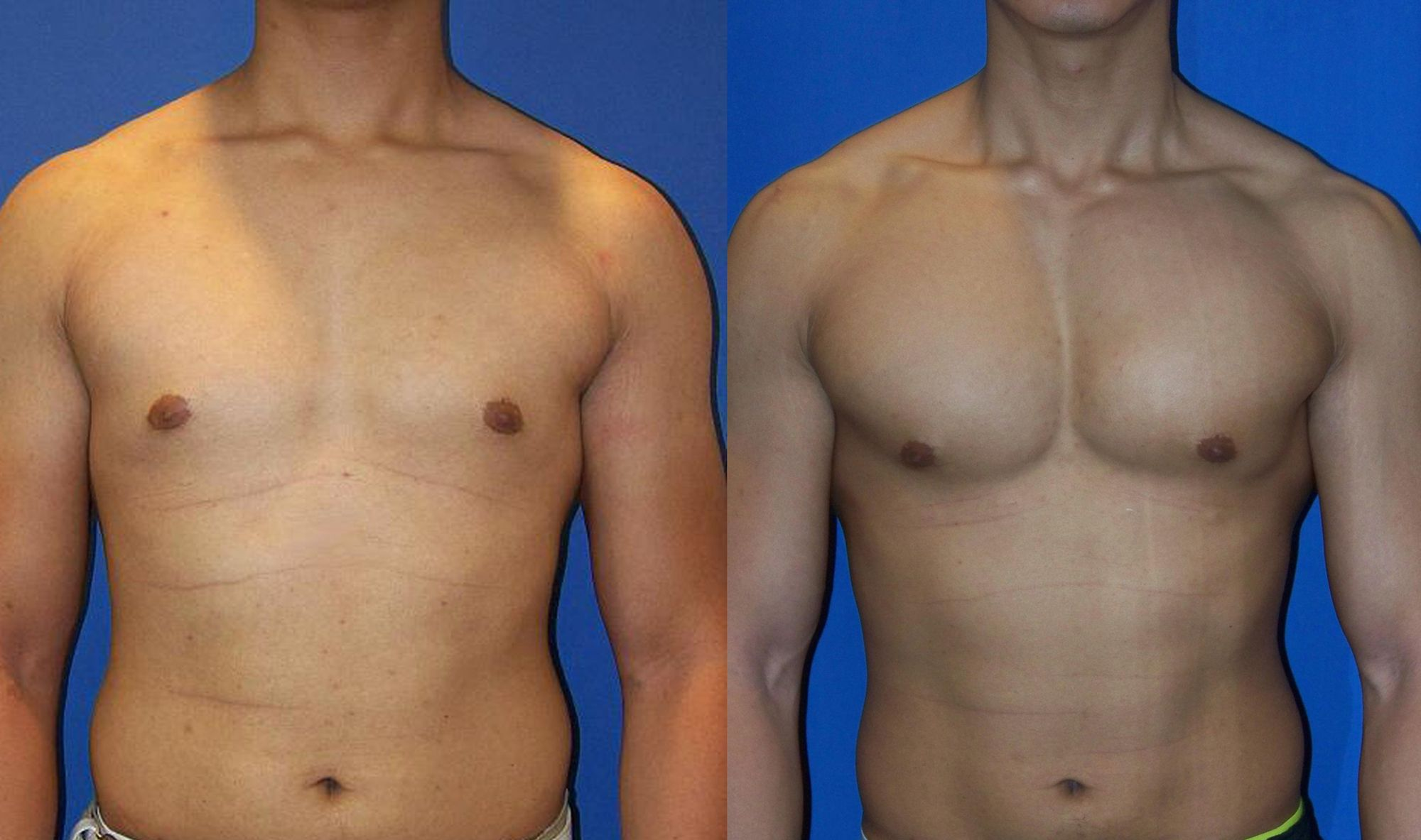 Pectoral prosthesis - Picture 1