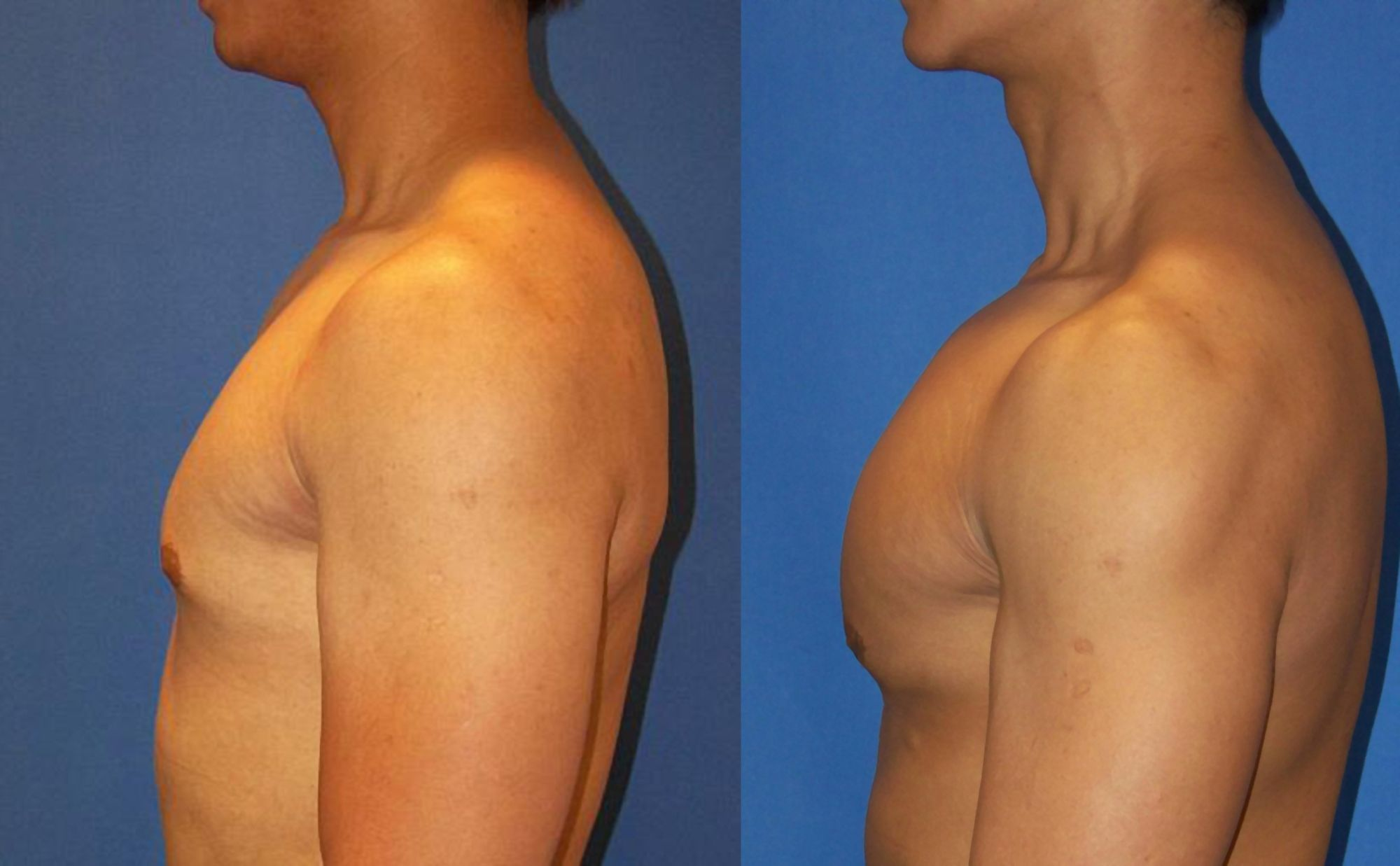 Pectoral prosthesis - Picture 2