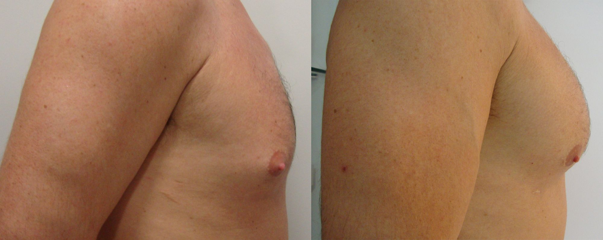 Pectoral prosthesis - Picture 4