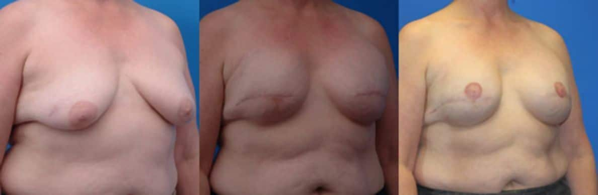 Mammary reconstruction - Picture 4