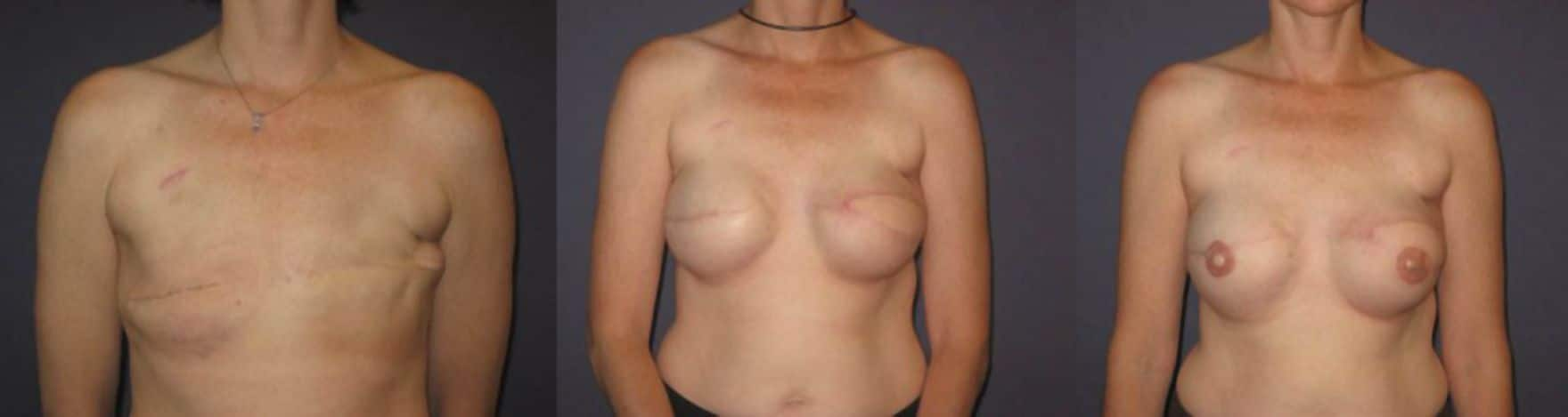 Mammary reconstruction - Picture 2