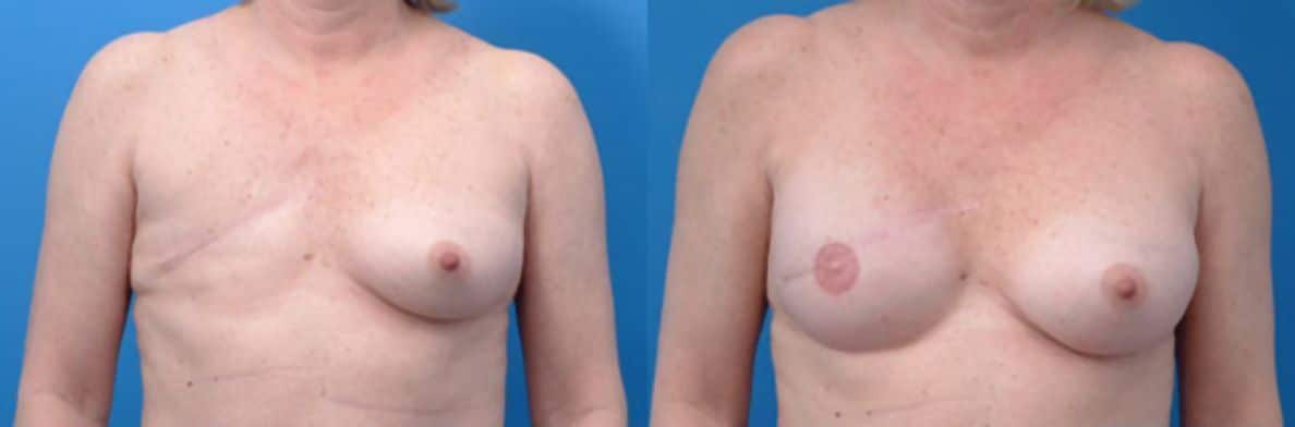 Mammary reconstruction - Picture 1