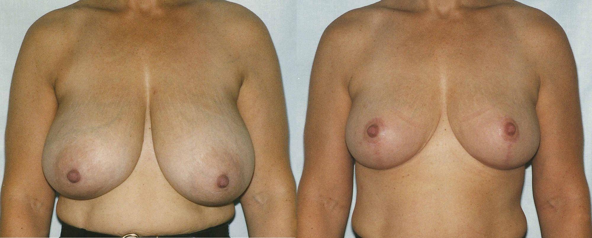 Reducció de mames - Foto 4