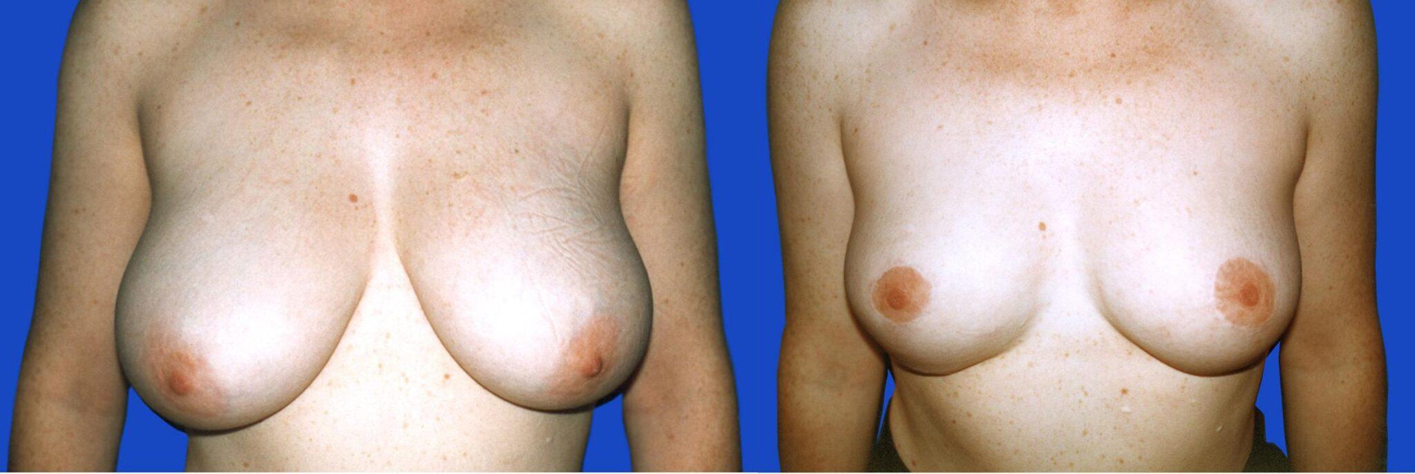 Reducció de mames - Foto 3