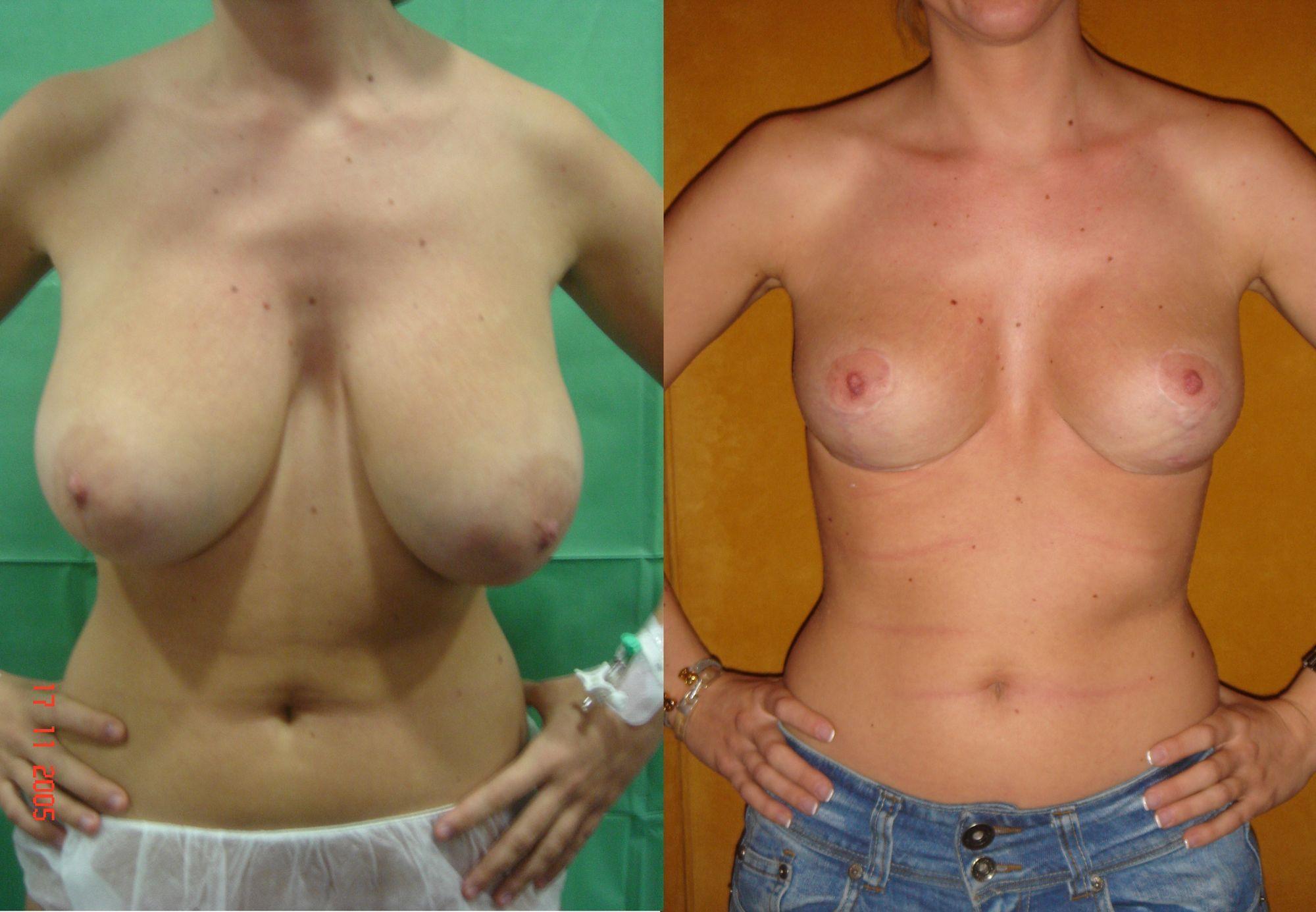 Reducció de mames - Foto 2