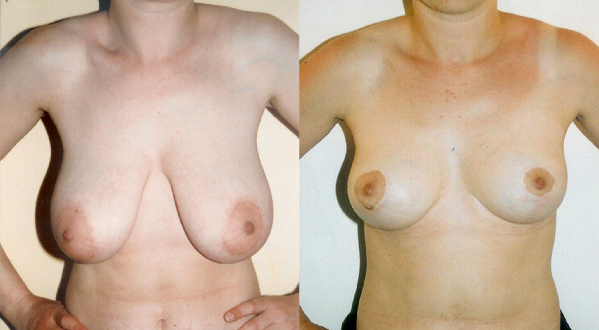 Reducció de mames - Foto 1