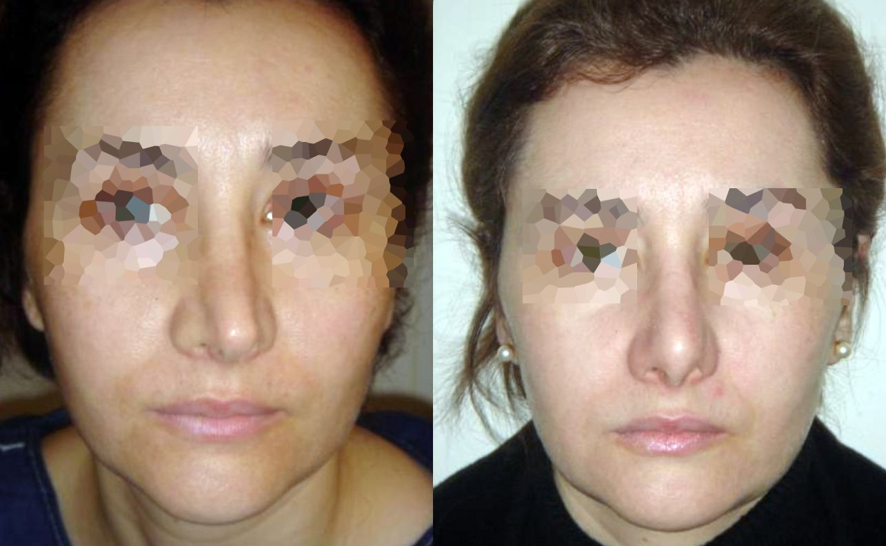 Septoplasty - Picture 1