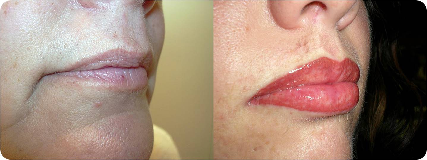 Lip augmentation with hyaluronic acid - Picture 5