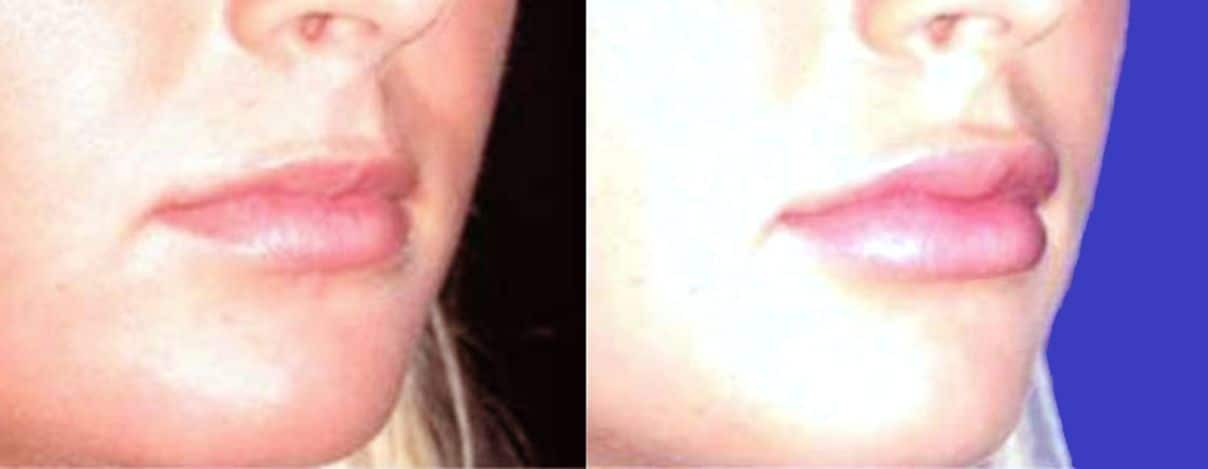 Lip augmentation with hyaluronic acid - Picture 6