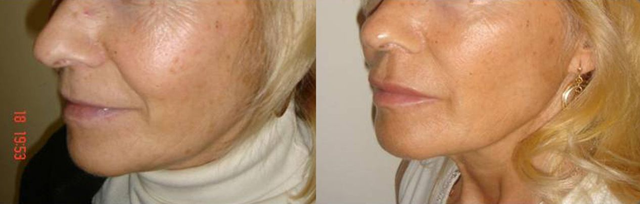 Lip augmentation with hyaluronic acid - Picture 3