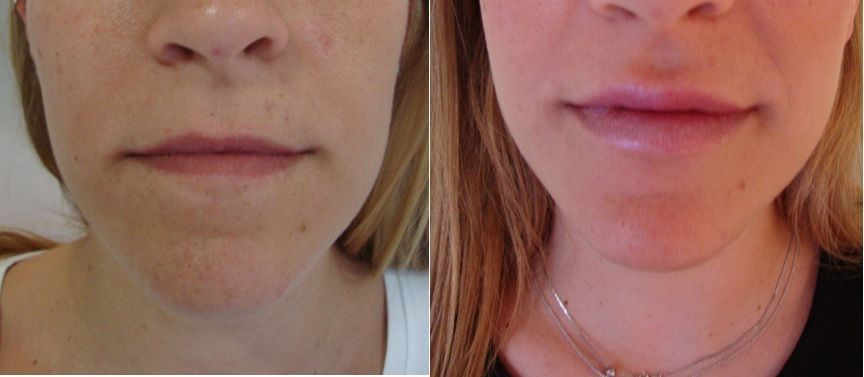 Lip augmentation with hyaluronic acid - Picture 7