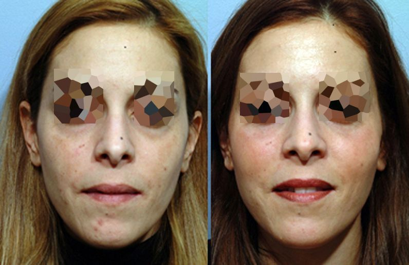 Cheekbones augmentation with hyaluronic acid - Picture 3
