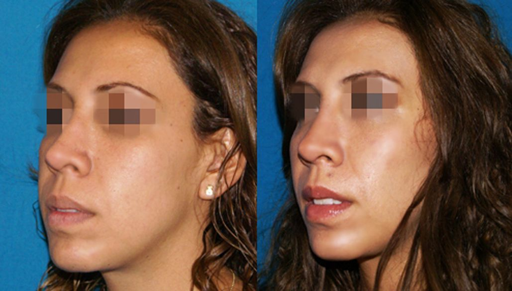 Cheekbones augmentation with hyaluronic acid- Picture 1