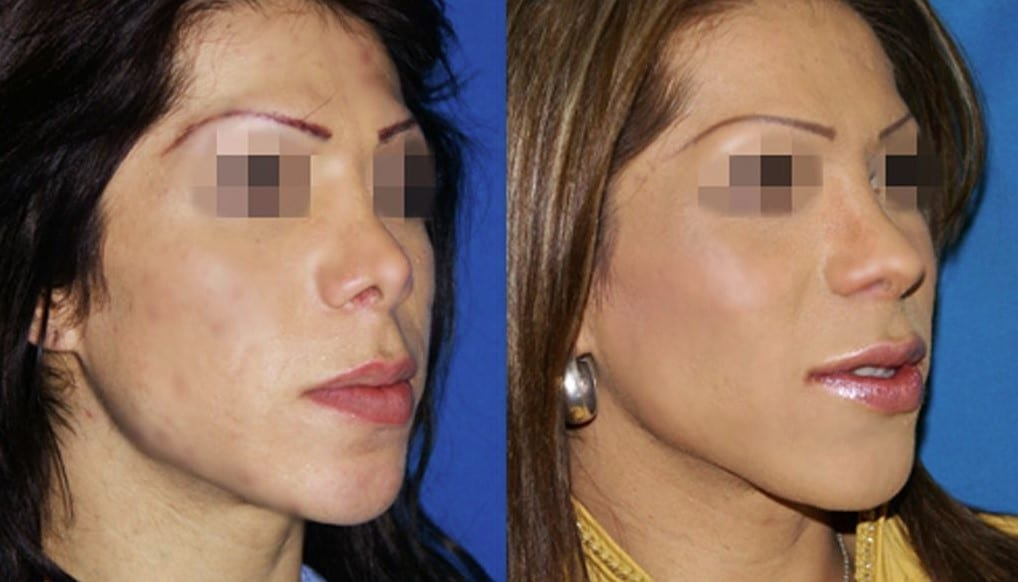 Cheekbones augmentation with hyaluronic acid - Picture 2