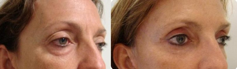 Blepharoplasty, eye bags - Picture 3