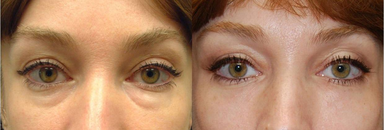 Blepharoplasty, eye bags - Picture 6