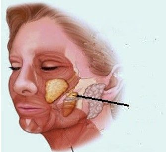 Bolas de Bichat-Bichectomia