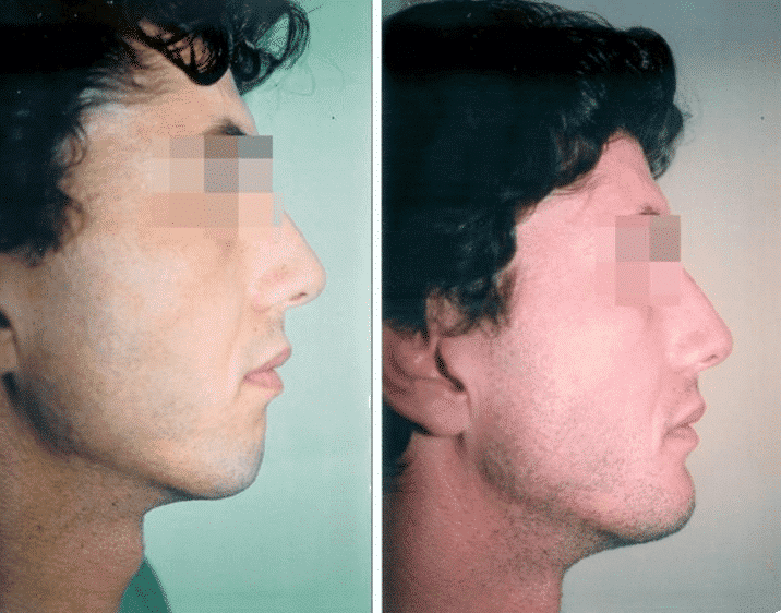 Chin augmentation with hyaluronic acid - Picture 2