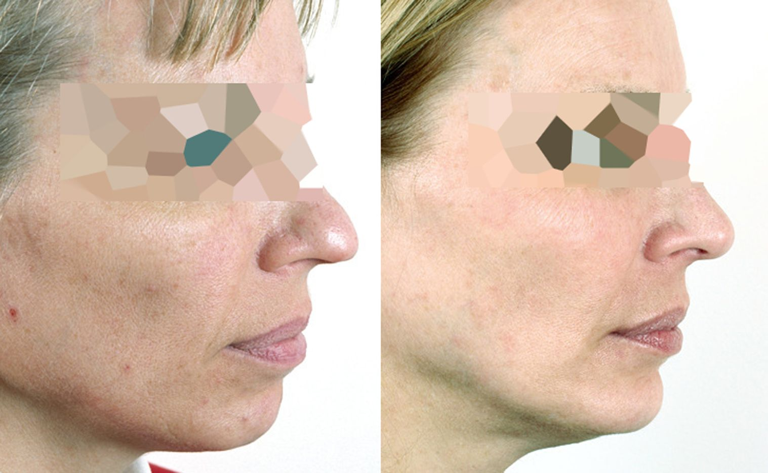 Chin augmentation with hyaluronic acid - Picture 3