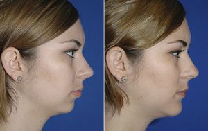 Chin augmentation with hyaluronic acid - Picture 4