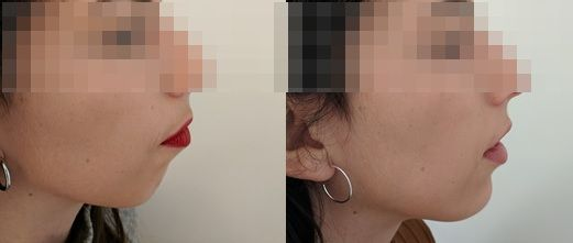 Chin augmentation with hyaluronic acid - Picture 1