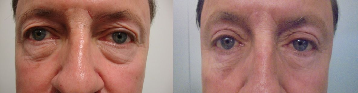 Dark circles removal with hyaluronic acid - Picture 1