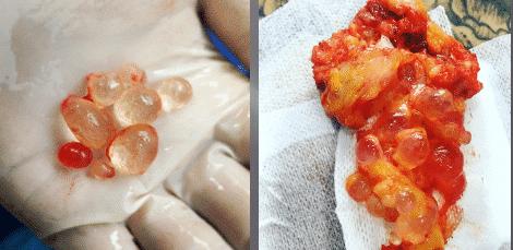 extracción de silicona o biopolímeros del cuerpo - foto 3