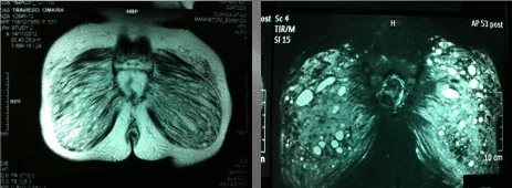 extracción de silicona o biopolímeros del cuerpo - foto 4