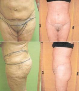 Cicatriu circumferencial 1