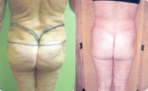 Cicatriu circumferencial 2