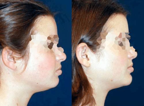 Liposucción de cara y cuello – foto 1